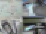 整形外科スクープ 局部モザ無しバージョン 2