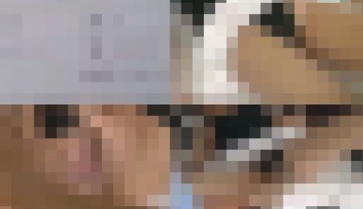 整形外科スクープ 局部モザ無しバージョン 5